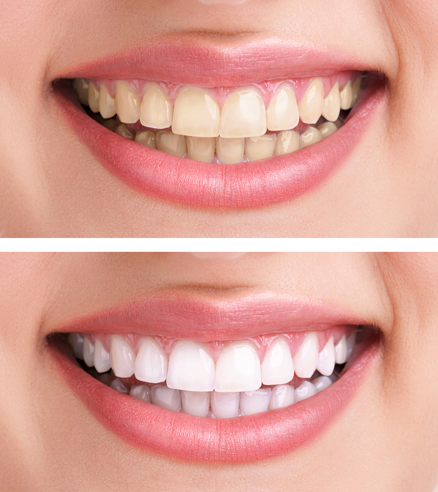 Teeth Whitening Service Philadelphia