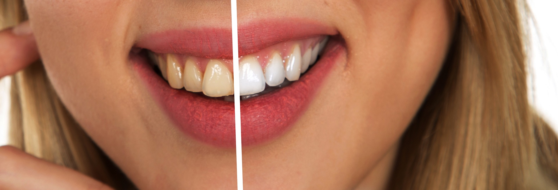 Jenkintown Dentist Teeth Whitening